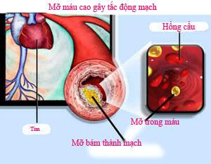 mỡ máu dẫn đến cao huyết áp
